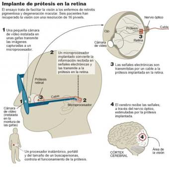 Implante_protesis_retina.jpg
