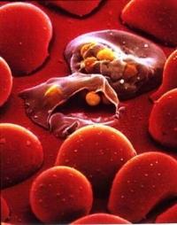 malaria3.jpg